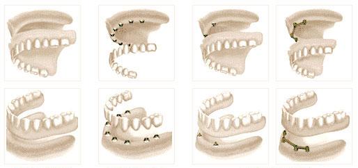 Milyen lehetőségek léteznek az elvesztett fogak pótlására?