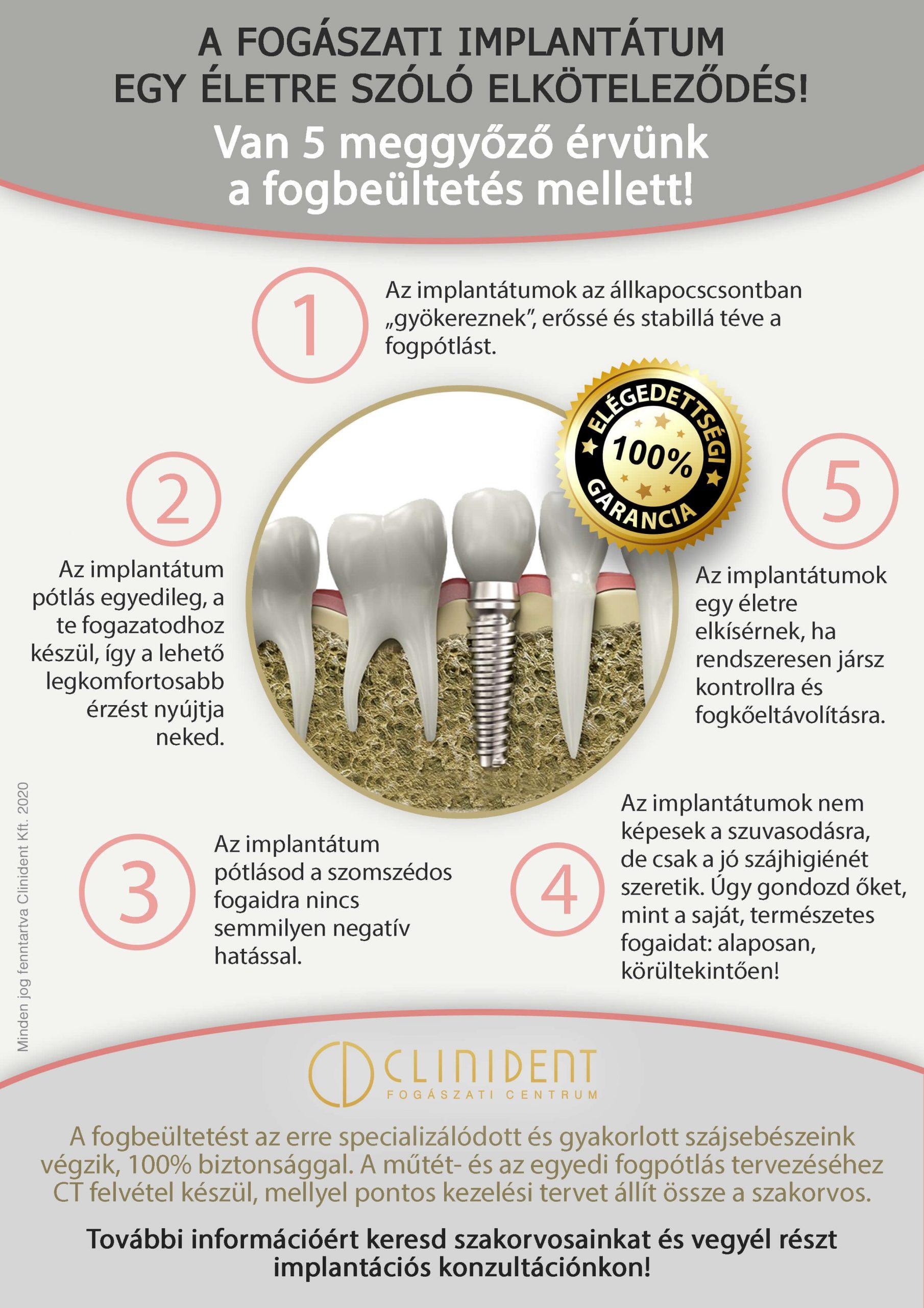5 érv a fogbeültetés mellett
