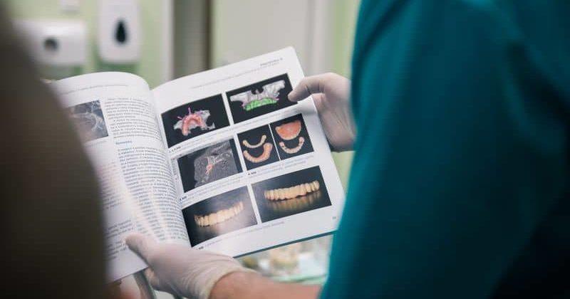 Fog implantátum precízen: szakértő diagnosztika és tervezés