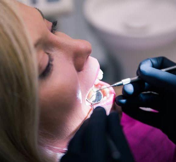 szájhigiéniai kezelés, dentálhigiéniai kezelés, fogkőeltávolítás