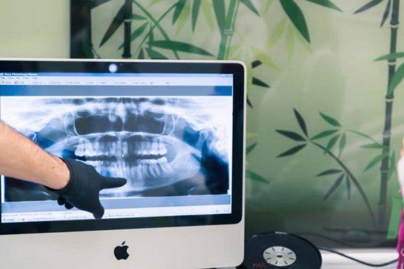 mitől fáj a foga, fogröntgen