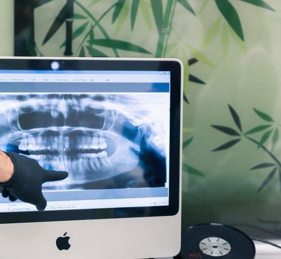 fogászati állapotfelmérés, fogászati kontroll, fogröntgen