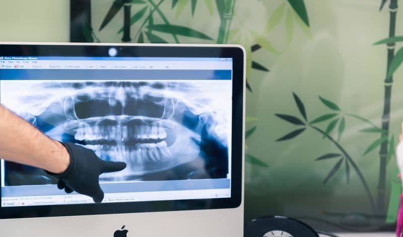 parodontológia, fogínygyulladás, fogröntgen