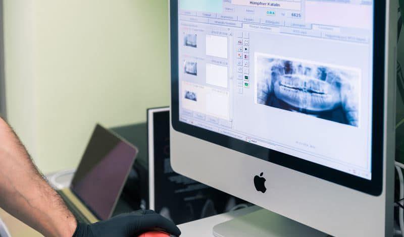 fogászati implantátum, fogászati implantáció, fogpótlás