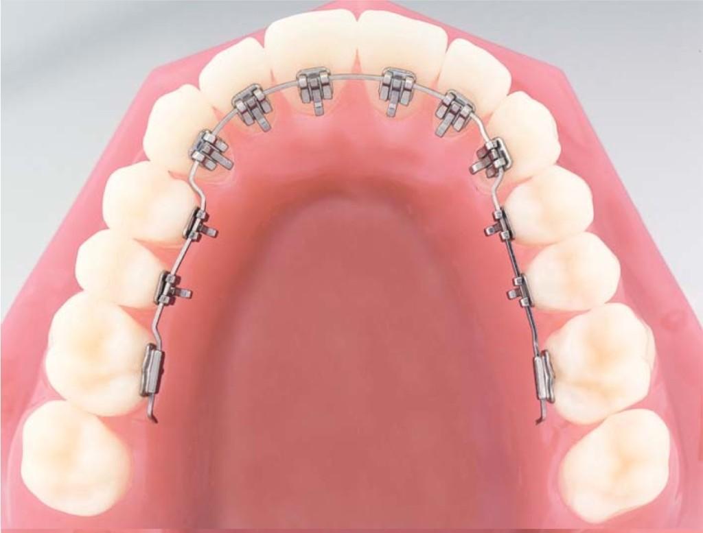 belső fogszabályozó