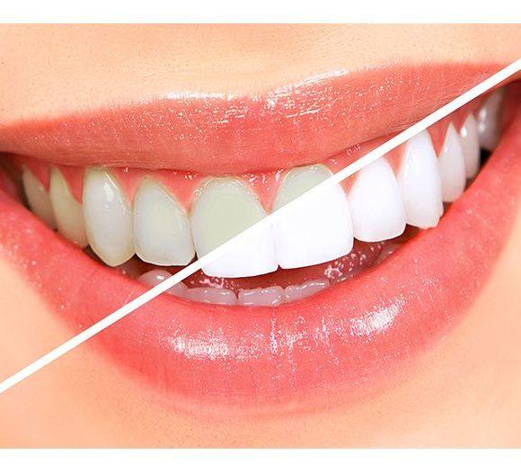 A fogkő-eltávolítás eredménye