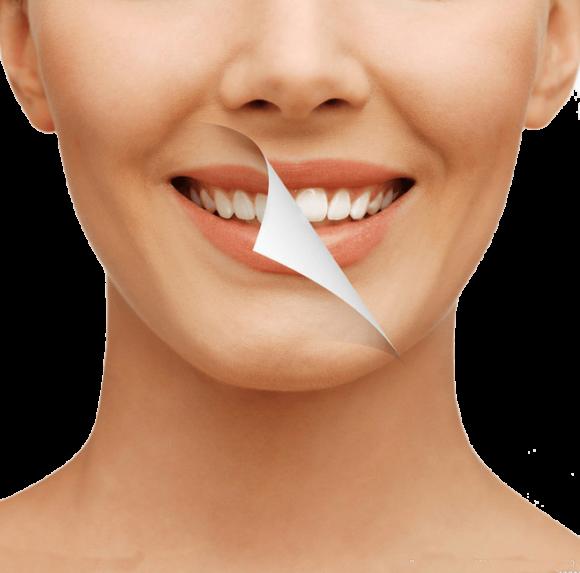Porcelán héj, esztétikai fogászat