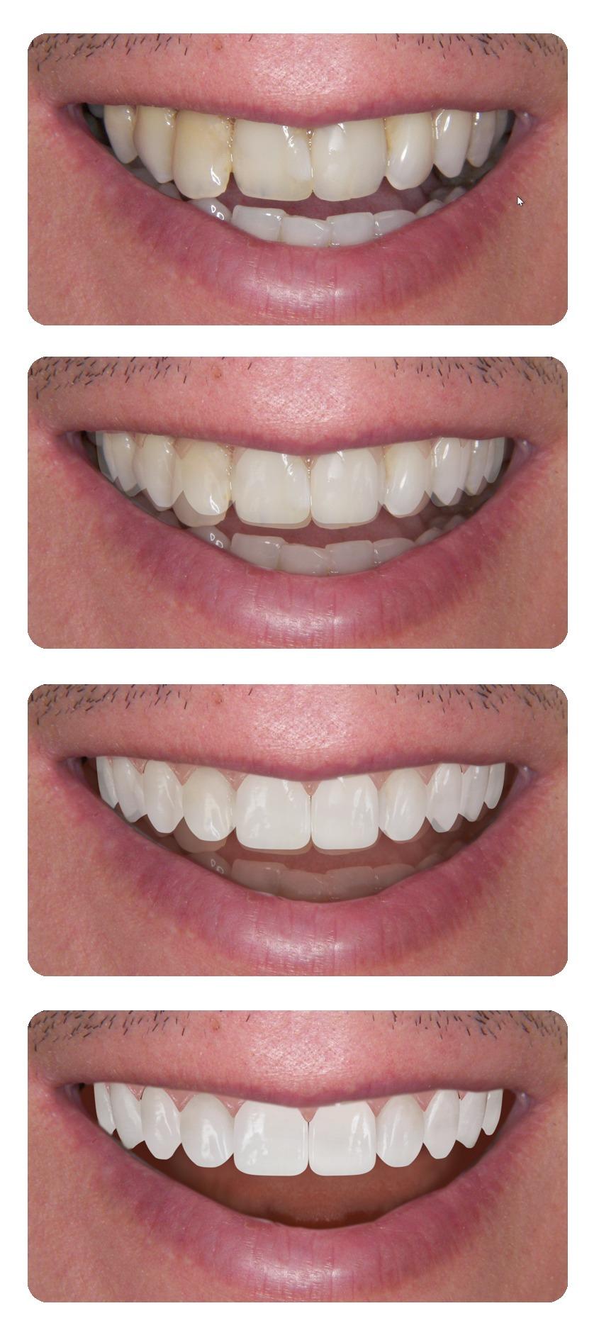 mosolytervezés, esztétikai fogászat