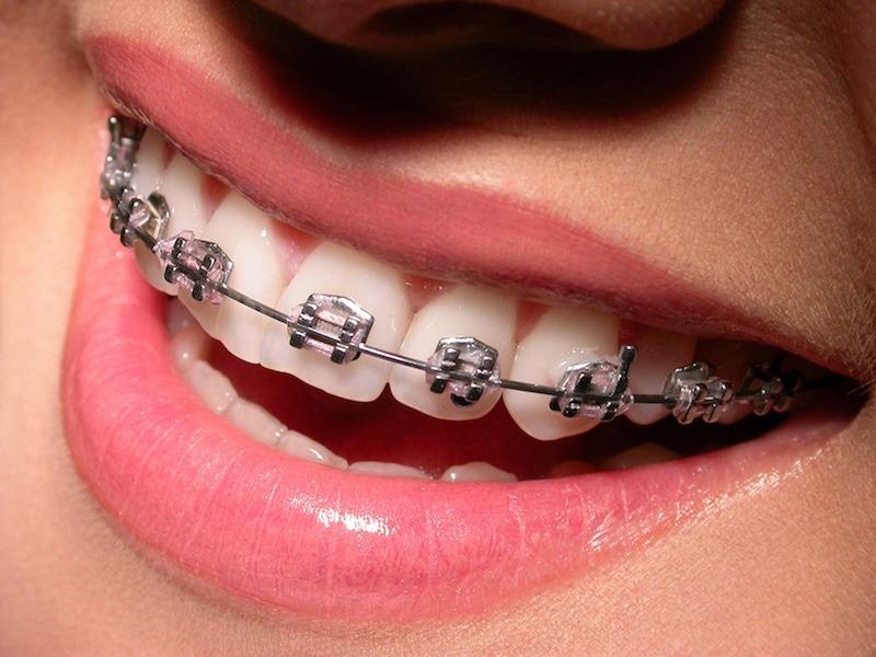 fogszabályozás, esztétikai fogászat