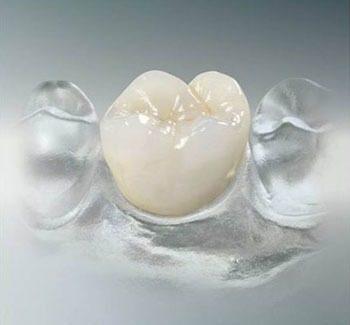 cirkónium korona, fogkorona, esztétikai fogászat