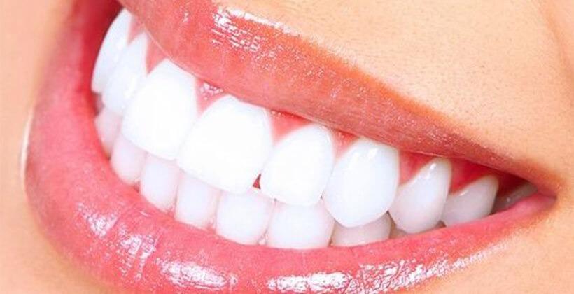 Hogyan lesznek nekem is fehérek a fogaim?