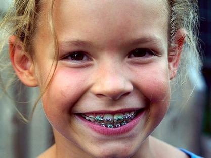 Gyermek fogszabályozás