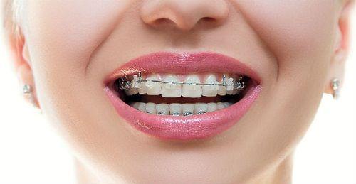 Mik a fogszabályozás lépései?