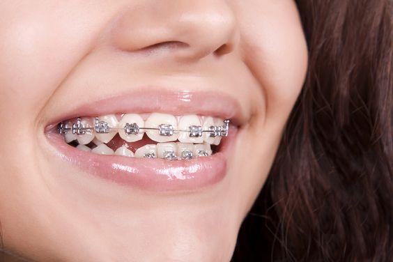 Mikor kezdjem gyermekemnél a fogszabályozást?