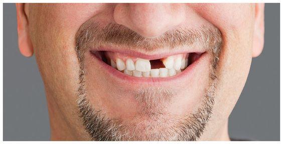 8 kérdés a foghiányról, amire választ vársz!– 1. rész