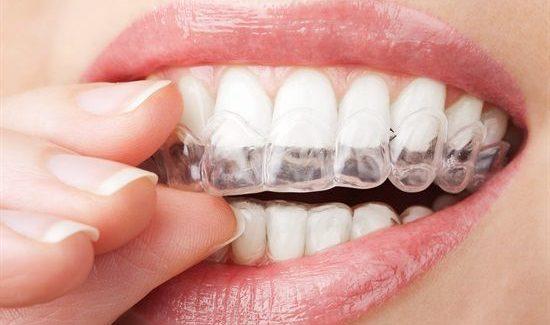 clear aligner fogszabályozó, láthatatlan fogszabályozó
