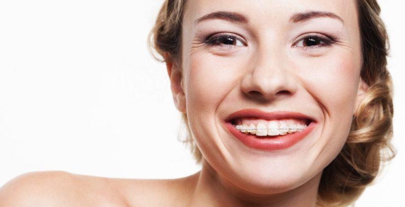 Porcelán fogszabályozó a szabályos fogsor szolgálatában
