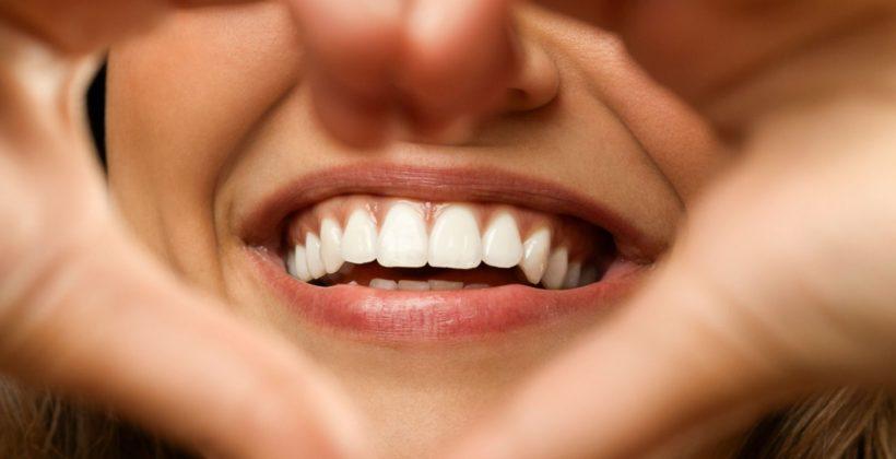 Nem megfizethetetlen a fogszabályozás!