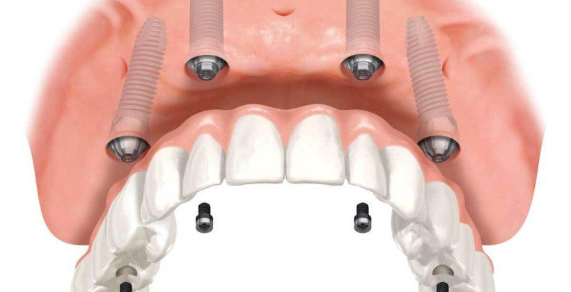 All on 4 technika: implantáció és teljes fogsor pótlása egyben