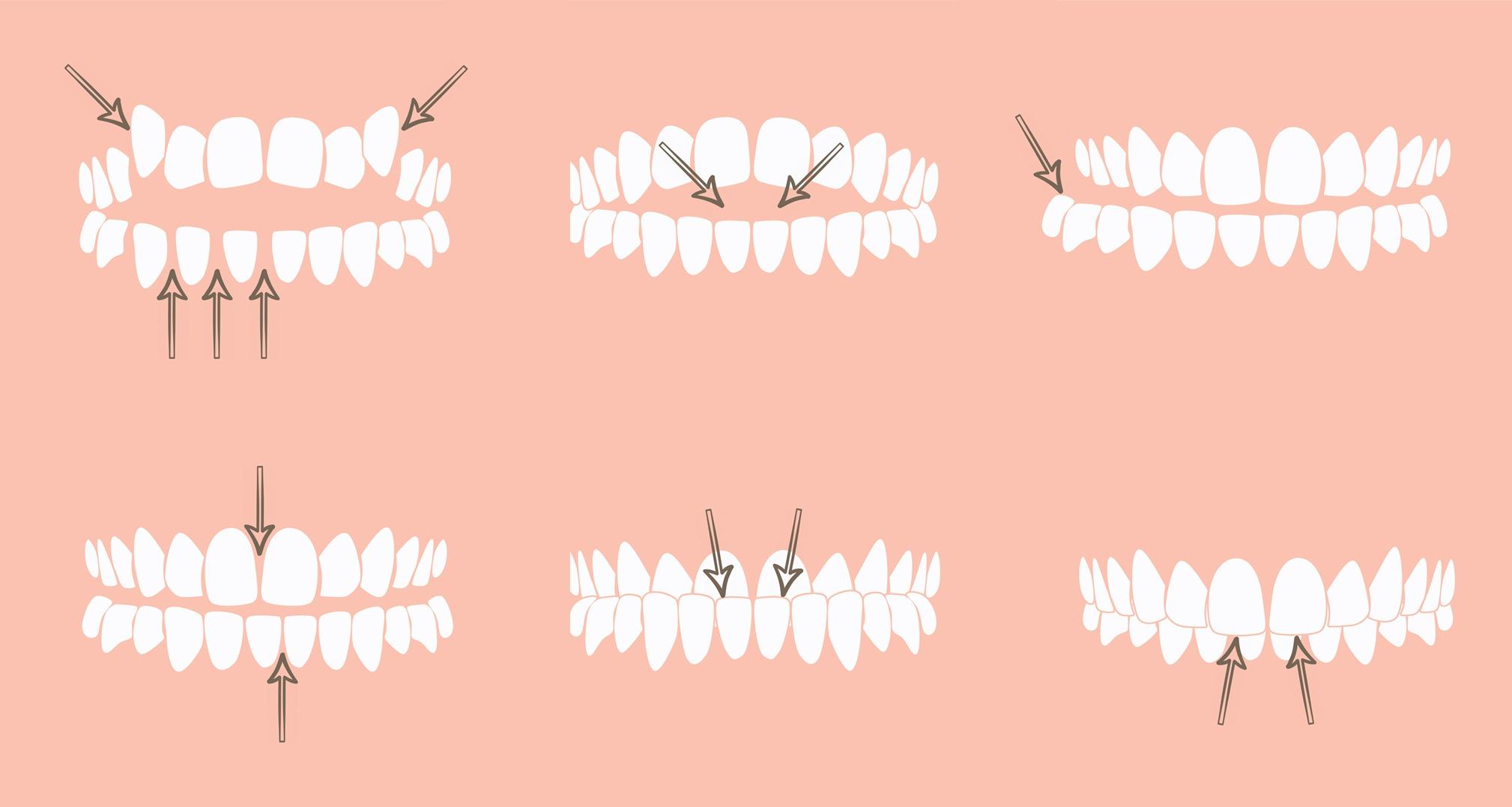 fogszabályozás, szabálytalan fogsor