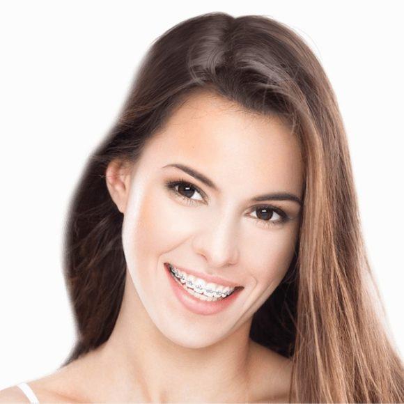Mit tud az önligírozó fogszabályozó készülék?