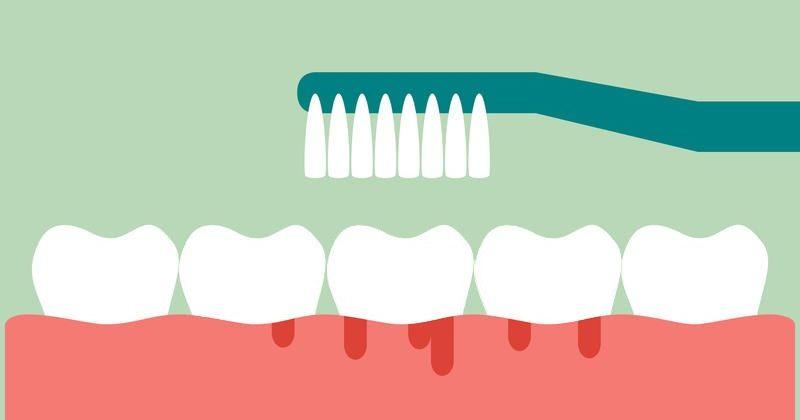 Hogyan történik a fogínyvérzés kezelése?