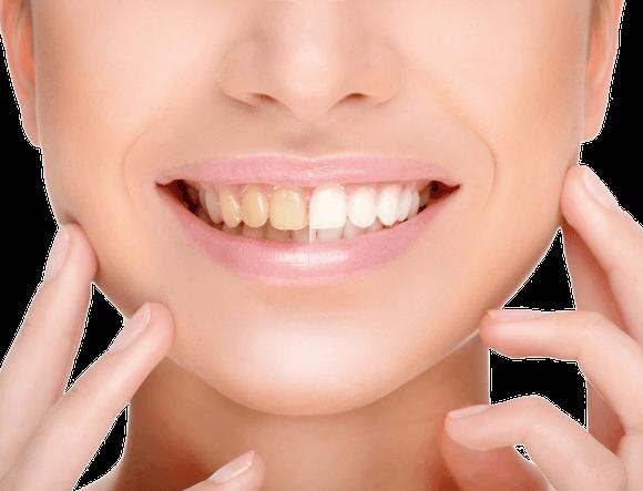 Orvosi fogfehérítés a magabiztosság szolgálatában