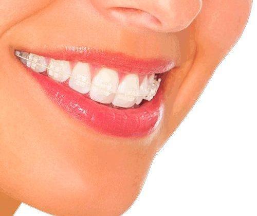 Esztétikus fogsor zafír fogszabályozó segítségével