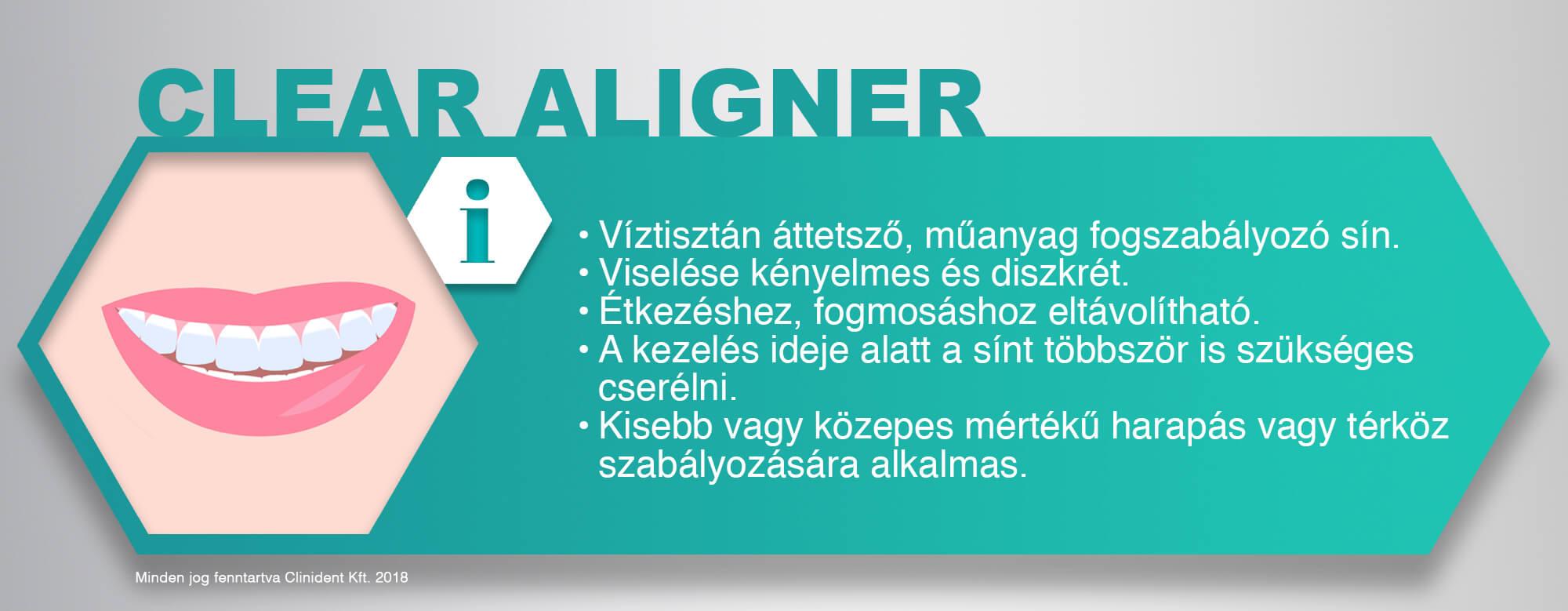 Clear aligner fogszabályozó, láthatatlan fogszabályozó, fogszabályozás