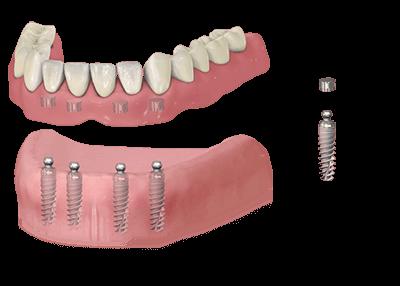 A fogászati implantátum szerepe a teljes fogpótlásban