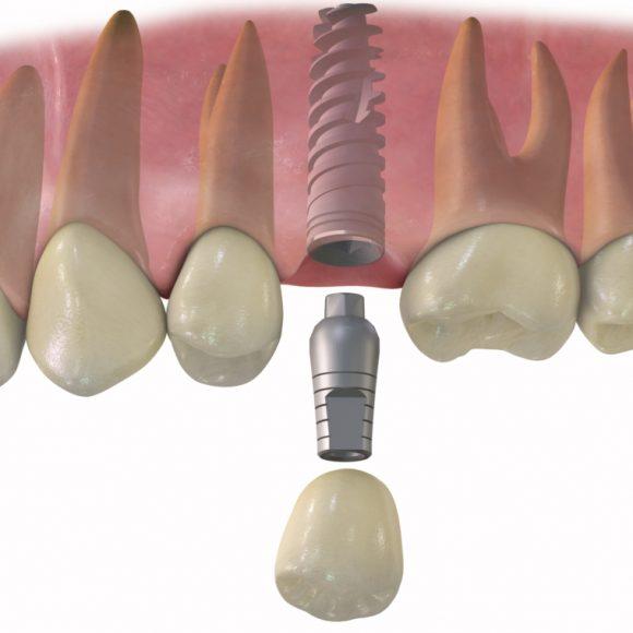 Fog implantátum beültetés: felejtsd el a foghiány hátulütőit egy életre!