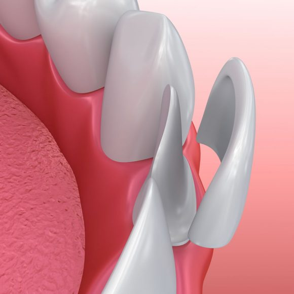 Porcelán héj az esztétikai fogászatban – Ez az 5 legfontosabb előnye!