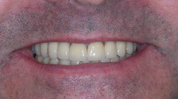 fogászati impantátum