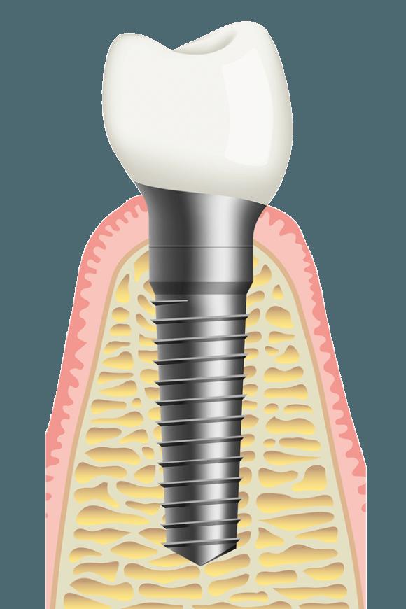 azonnali implantáció