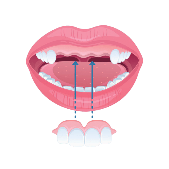 fogbeültetés
