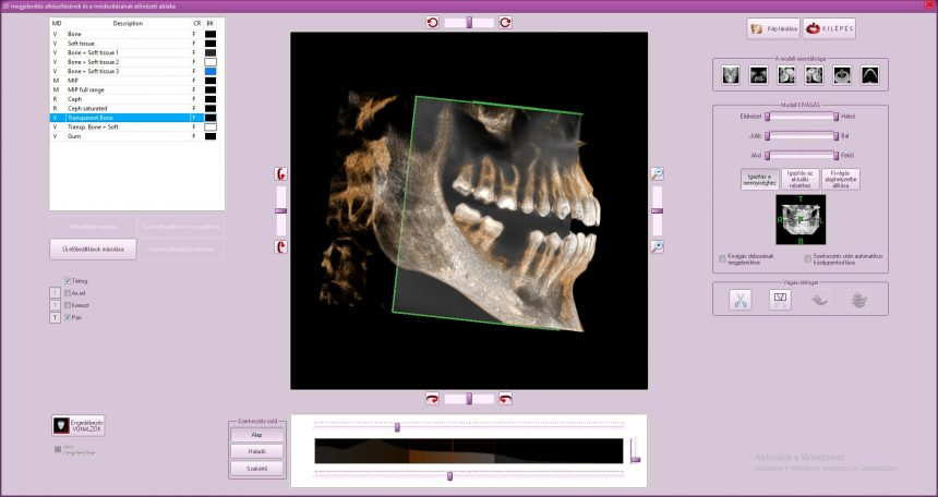 fogászati CT