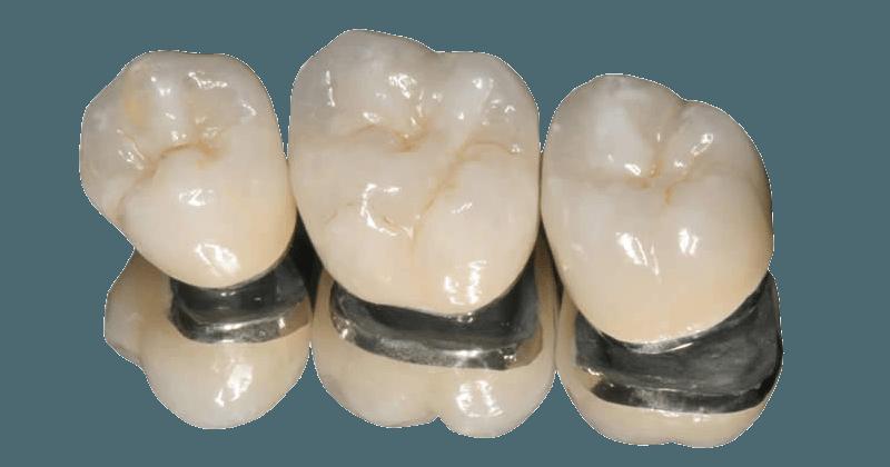 Fogpótlás fémallergia esetén: cirkon foghíd