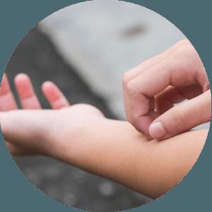 fogászati allergia és fémallergia