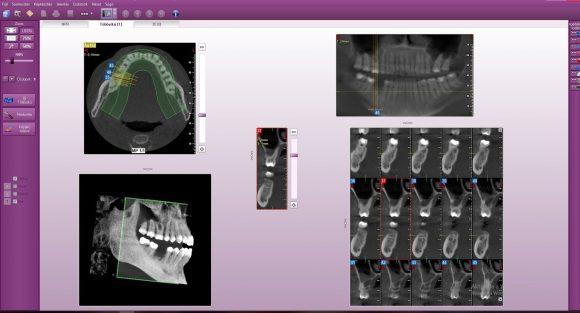 CBCT felvétel a 3dimenziós fogröntgen